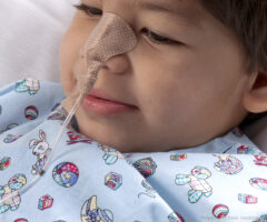 Small Dale NasoGastric tube holder on a child