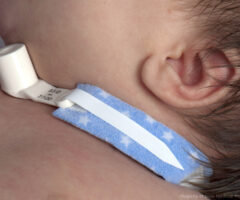 Dale Pediprints® tracheostomy tube holder for infants