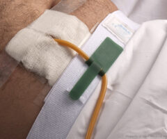 Dale Hold-n-Place® Waist Band holding a Foley catheter line